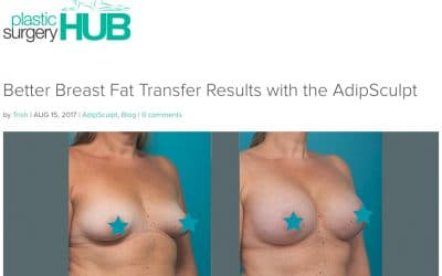 Better Breast Fat Transfer Results with the AdipSculpt