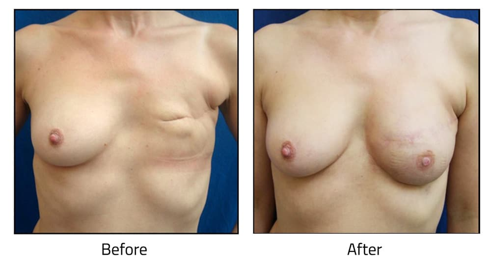 Injection of 177cc on right with lipofilling procedure using MACROFILL Medium after a mastectomy