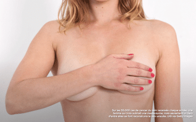 Lipomodeling, a gentle reconstruction after a breast cancer